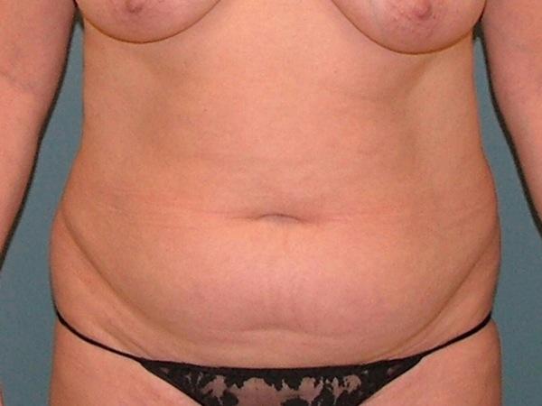 Tummy Tuck Before