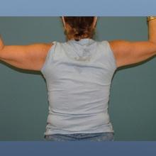 Arm Lift Brachioplasty After