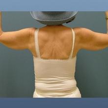 Arm Lift Brachioplasty Before