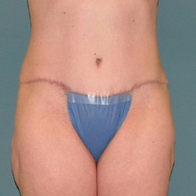 Body Contouring After