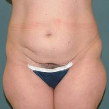 body-contouring_before.jpg