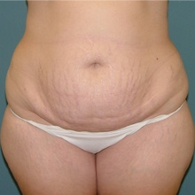 Body Contouring Before