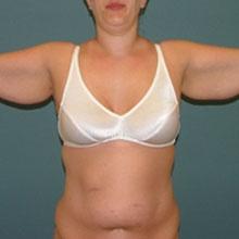 arm_lift_brachioplasty_before