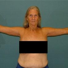 arm_lift_brachioplasty_after