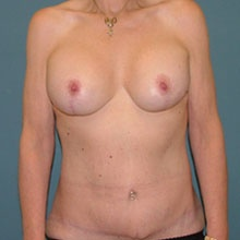 combination-body-lift+breast-lift_after