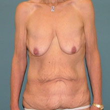 combination-body-lift+breast-lift_before