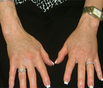 Fat Grafting Hands After