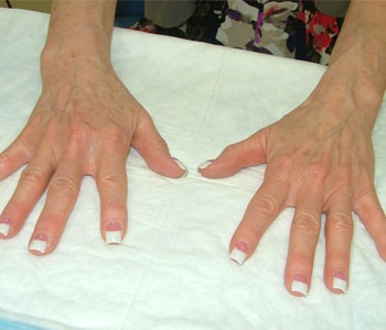 Fat Grafting Hands Before