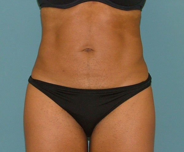 liposuction_after