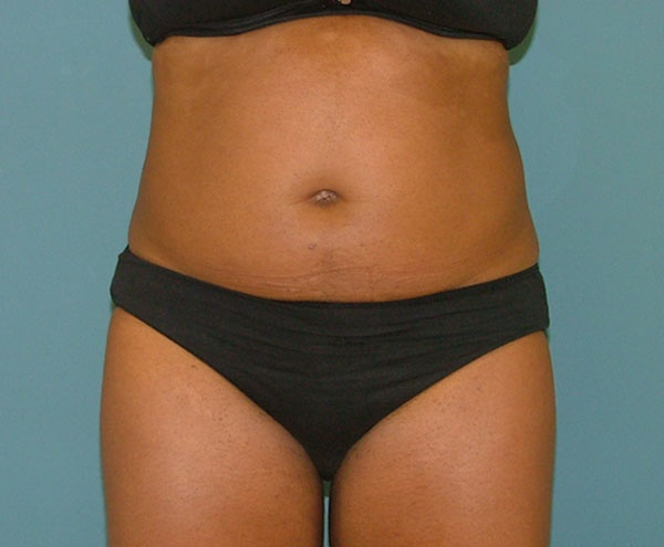liposuction_before