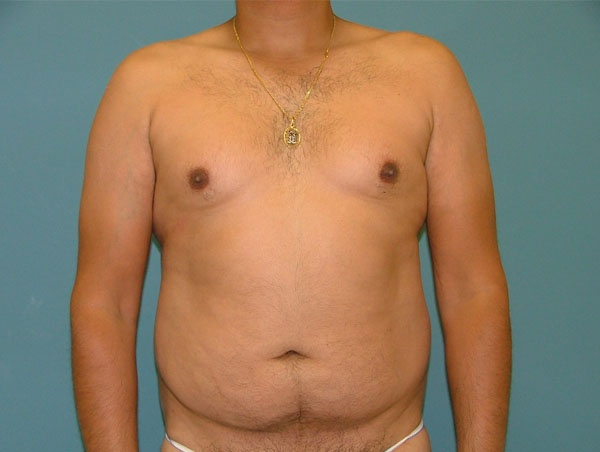 liposuction-before