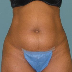 liposuction_before