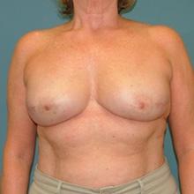 bilateral_mastectomy_after