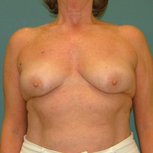 bilateral_mastectomy_before