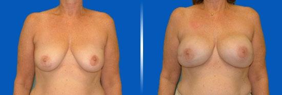 breast-reconstruction_02_4_myths
