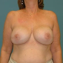 breast-reconstruction-front-after