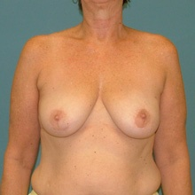 breast-reconstruction-front-before