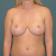 breast-reduction-front-after