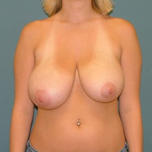 breast-reduction-front-before