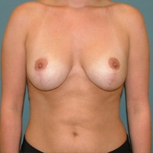 Breast Surgery After