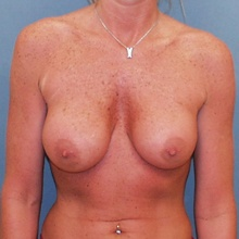 Breast Surgery Before