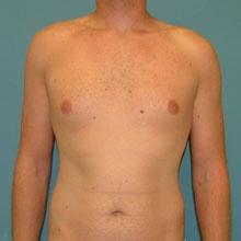 gynecomastia_male_before