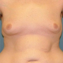 gynecomastia_before