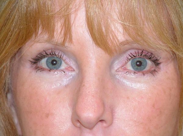 Blepharoplasty Eyelid Surgery After