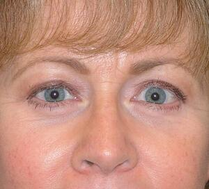 Blepharoplasty Eyelid Surgery Before