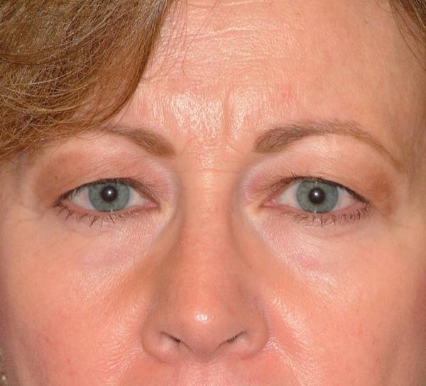 Blepharoplasty Eyelid Surgery Before