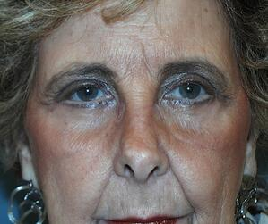 Blepharoplasty Eyelid Surgery After