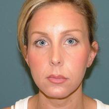 Cheek Contouring (Genioplasty) After
