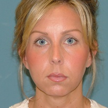 Cheek Contouring (Genioplasty) Before
