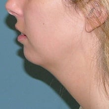 Cheek Contouring (Genioplasty) Before