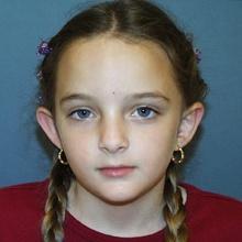 Ear Surgery (Otoplasty) Before