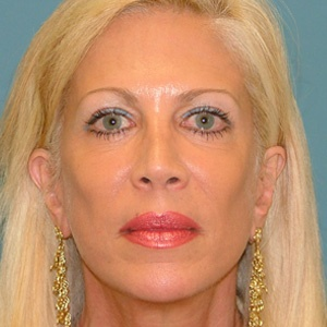 facelift cheek implant after