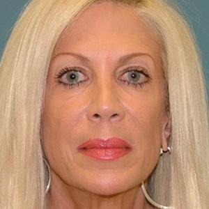 facelift cheek implants before
