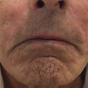 Injectable Filler Before
