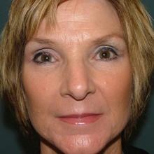 Lip Enhancement & Augmentation After
