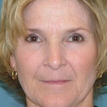 Lip Enhancement & Augmentation Before