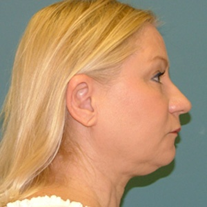 neck liposuction side before