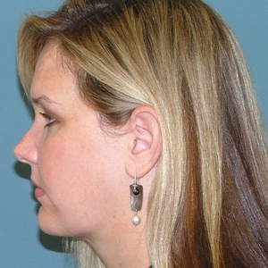 neck liposuction side after