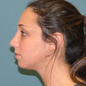 rhinoplasty after