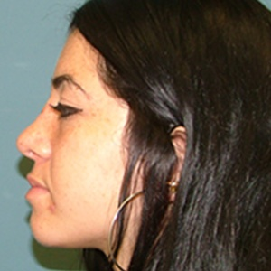 rhinoplasty_female_side view_after