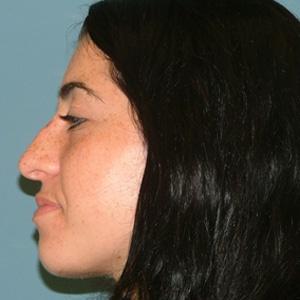 rhinoplasty_female_side view_before