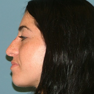 rhinoplasty_female_side view_before