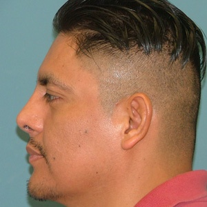rhinoplasty_side_male_after