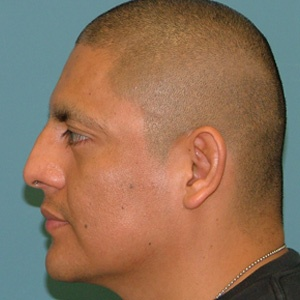 rhinoplasty_side_male_before