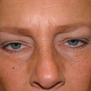 forehead lift before